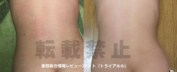 沖縄ソルトスパ美塩ビフォー・アフター