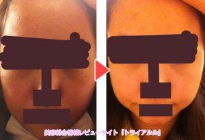 小顔体験キャンペーン施術後の効果